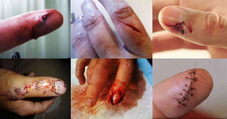 bloody-fingers